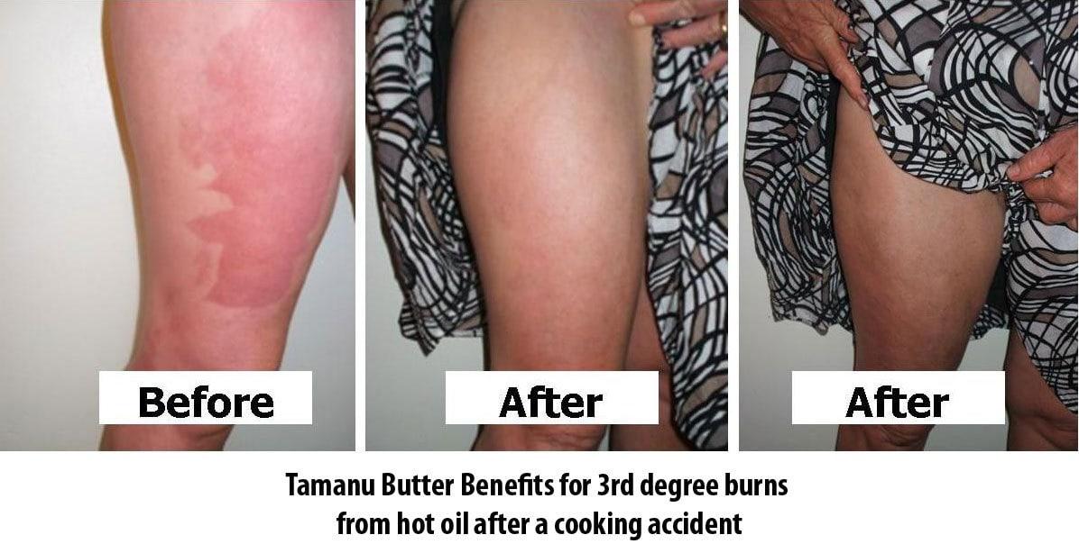 Vanuatu Tamanu Butter Benefit