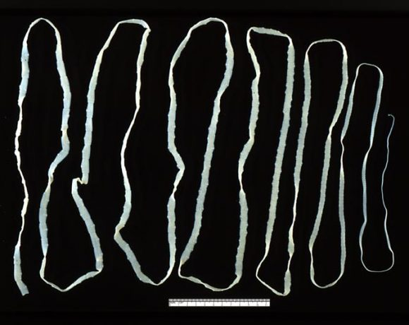 Adult Tapeworm (Wikimedia Commons)
