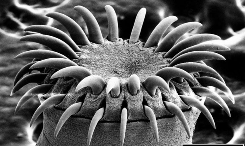 You'd Better Avoid Crossing Path With These 6 Human Parasites