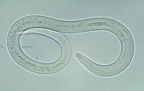 Hookworm_filariform_A (Wikimedia Commons)