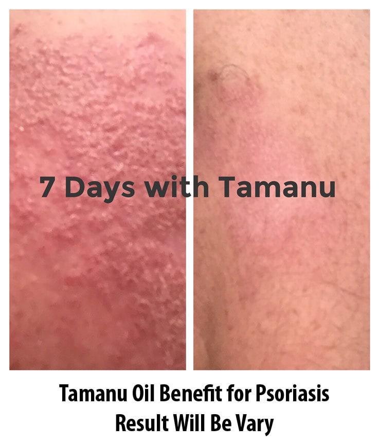Tamanu-Oil-Benefits-for-Psoriasis