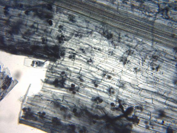 Arbuscular_mycorrhiza_microscope (Wikimedia Commons)