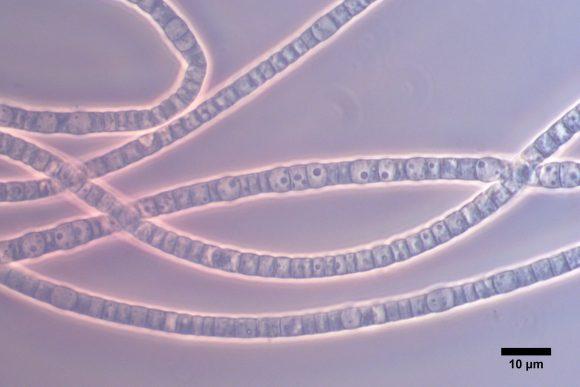 cablebacteri (UAntwerp)