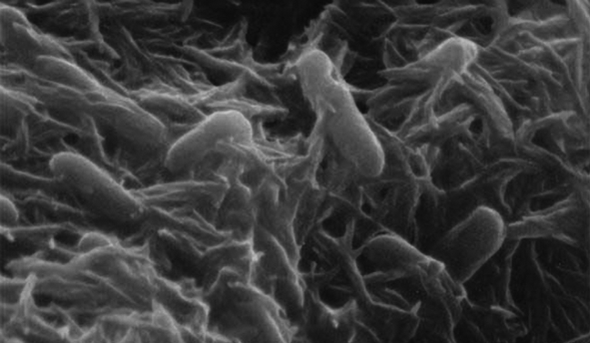 Electric Bacteria Can Be The Future Of Green Energy Generation