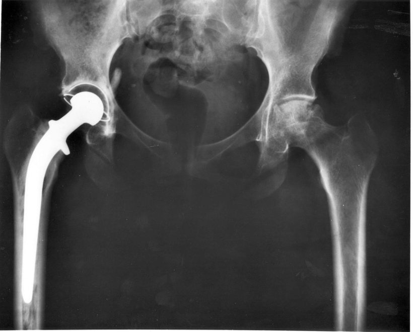 Medical Implants Could Soon Use New Plastic Biomaterials